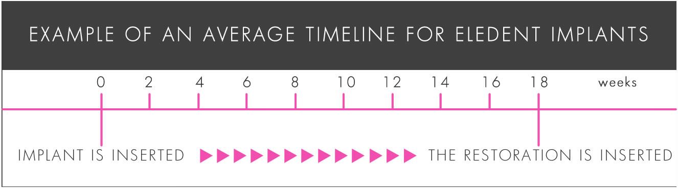 Dental Implants Timeline