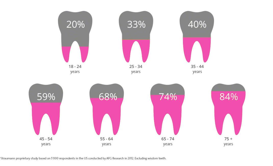 Dental Implants Info