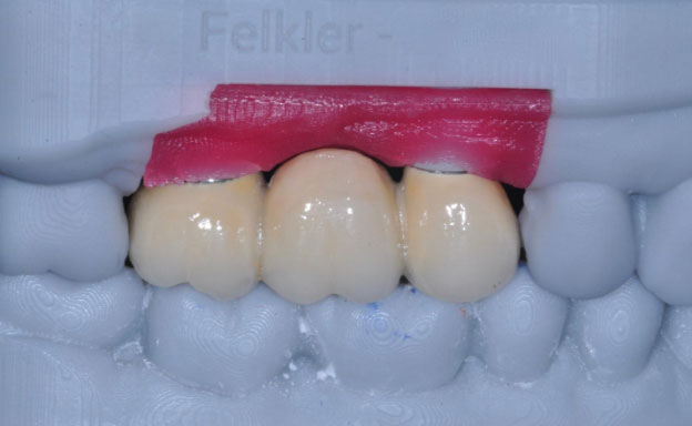 fixed 3 unit Implant supported bridge