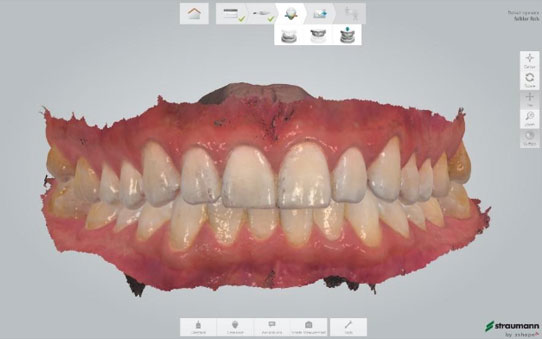 Digital Scan for Smile Makeover