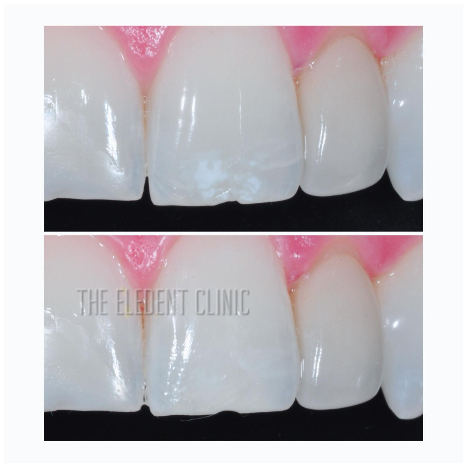 Icon White Spot Treatment