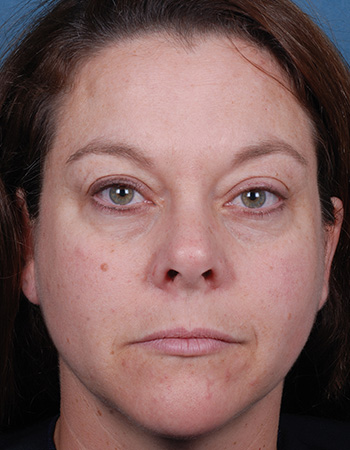After 3 x Blue Peel Radiance treatments