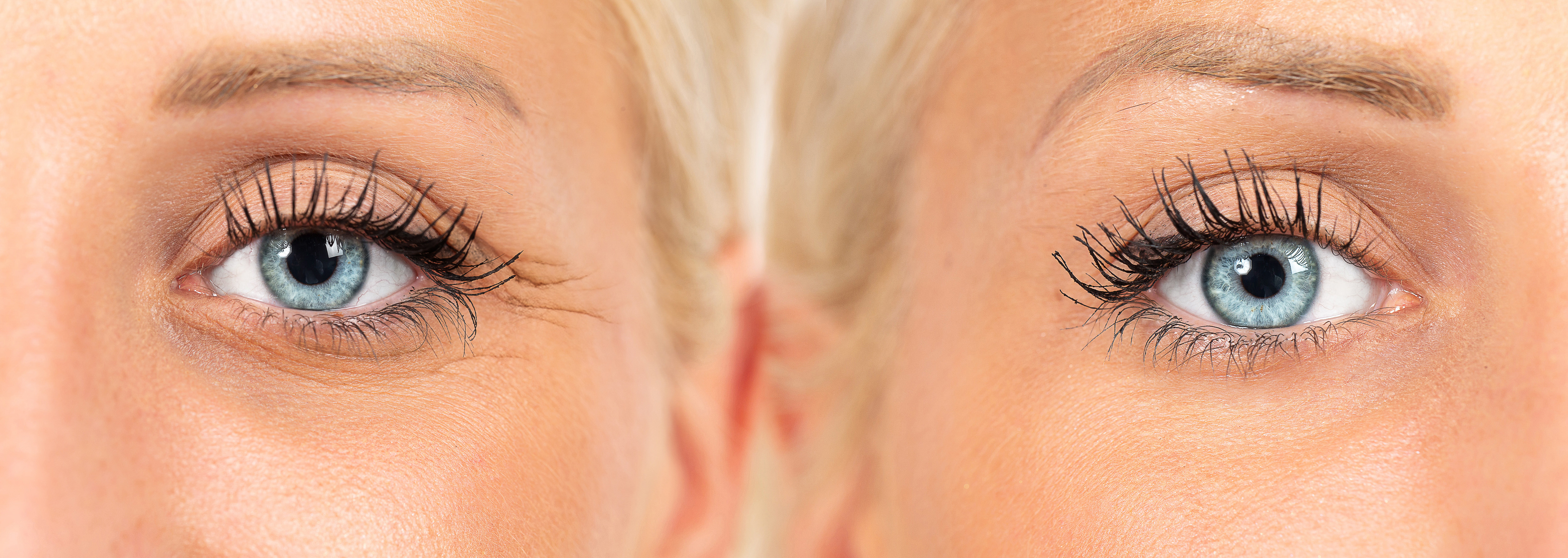 wrinkles cosmetic treatment, images composition showing results before and after crow's feet removal